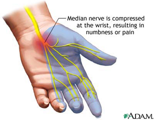 Carpal Tunnel with Median Nerve
